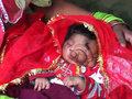 İki üzlü qız doğuldu - VİDEO - FOTO: Maraqlı