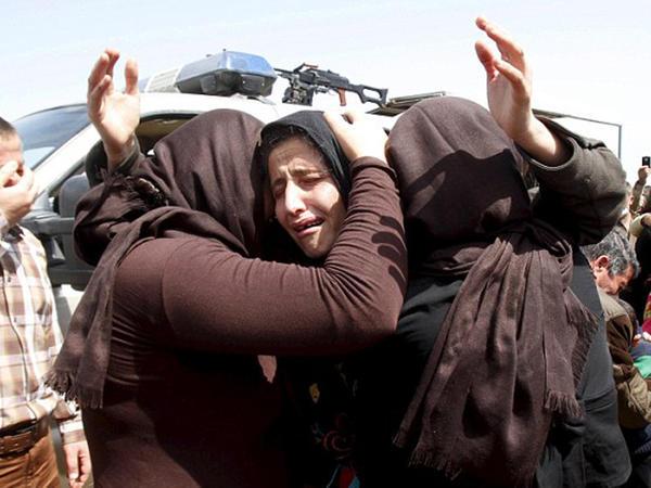 14 yaşlı qız zorlanmaq istəmədi, yandırıldı - FOTO