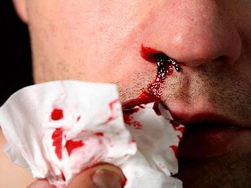 blood clot in nose க்கான பட முடிவு