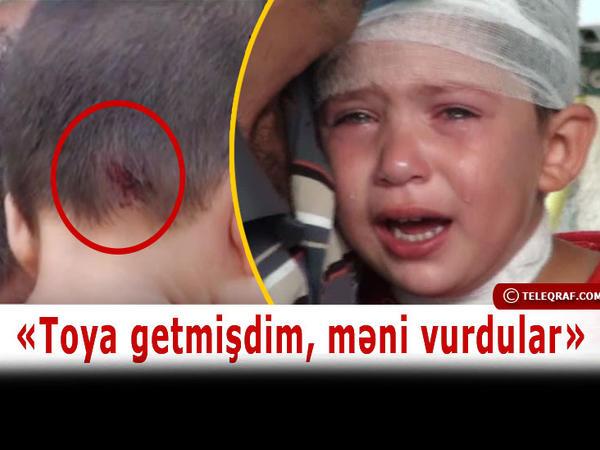 """Erməni gülləsinə tuş gələn 3 yaşlı Zəhra: """"Onların hamısını öldürəcəm"""""""