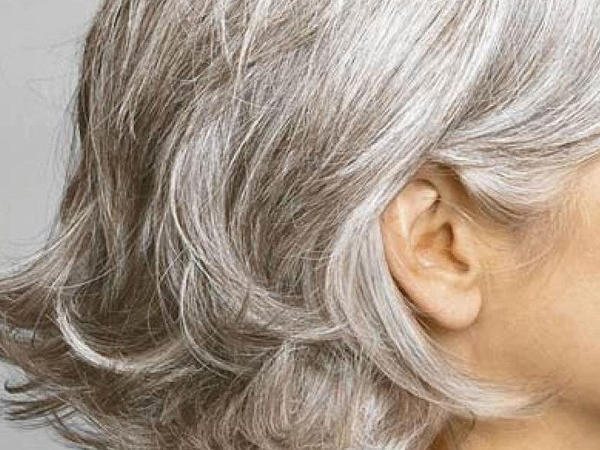 Saçlar niyə vaxtından tez ağarır?