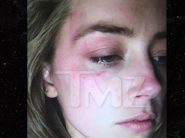 Aktrisa özündən 22 yaş böyük əri tərəfindən döyüldü - FOTO