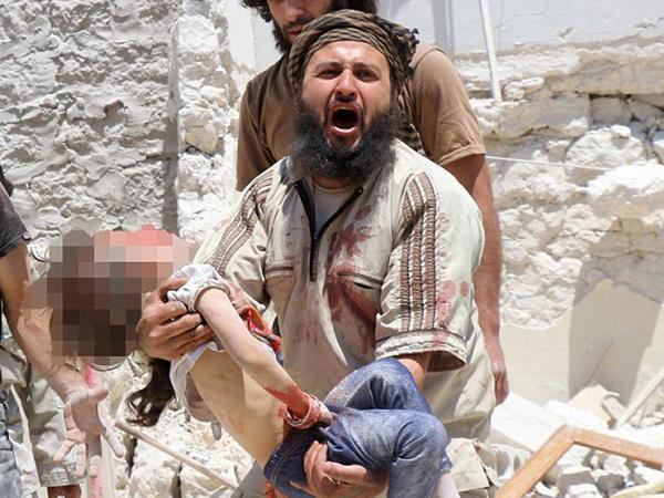 Suriyada faciə daha da ağırlaşıb - FOTO