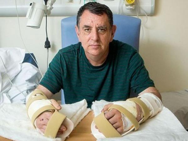 Kişiyə donor əlləri transplantasiya olunub