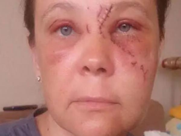 Bakıda baxımsız eskalator: qadın ağır xəsarət aldı - VİDEO