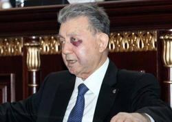 """Akif Əlizadəyə nə olub? - <span class=""""color_red"""">Özü danışdı  - FOTO</span>"""