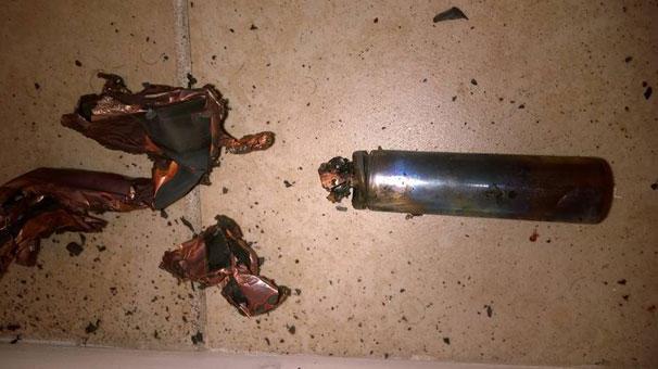 Elektron siqaret damağında partladı: 7 dişi töküldü - FOTO
