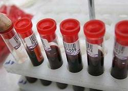 Pulsuz dərmanla təmin edilən hepatitli xəstələrin sayı açıqlandı