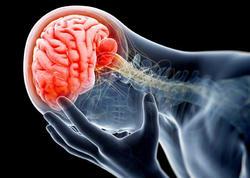 Baş beynin silkələnməsi