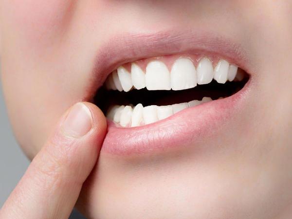Xarab dişlər bu ağır xəstəliyin riskini artırır