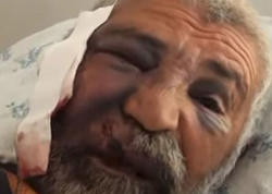 Canavarı boğub öldürən 61 yaşlı Rəcəb kişi danışdı - VİDEO