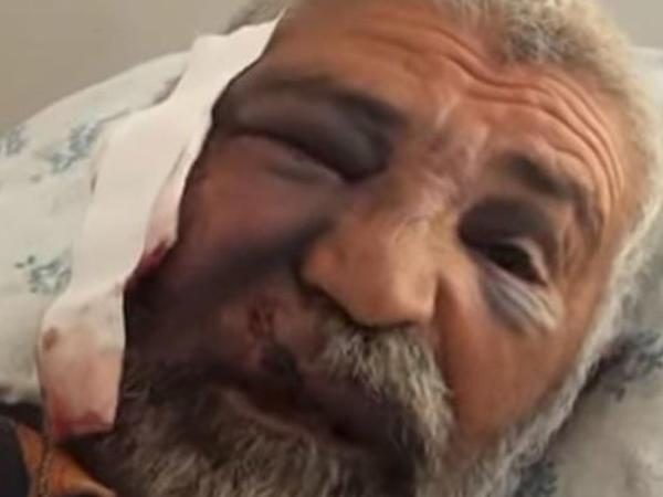 """""""Dişləri dodağımla gözümün altına düşdü"""" - 61 yaşlı kişi canavarı boğaraq öldürdü - VİDEO - FOTO - YENİLƏNİB"""