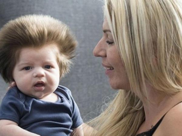 2 aylığında saçları ilə fenomen olmuşdu, indi isə... - FOTO