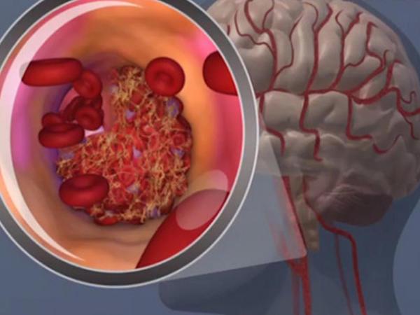 """Beyini cavanlaşdıran <span class=""""color_red"""">3 MƏHSUL</span>"""
