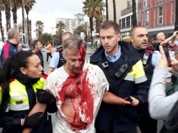 """Kataloniyada qanlı referendum başa çatdı - <span class=""""color_red"""">Xeyli yaralı və həbs edilən var - YENİLƏNİB - VİDEO - FOTO</span>"""