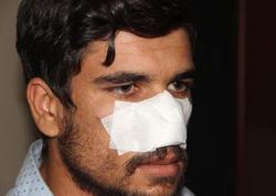 Əmioğlular arasında dava birinin burunsuz qalması ilə nəticələndi - FOTO