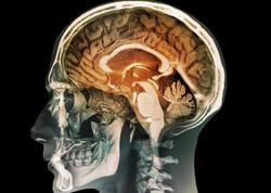 Yaddaşı inkişaf etdirən süni beyin parçası