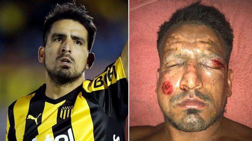 Futbolçunun üzündə fişəng partladı, ölümdən döndü - FOTO