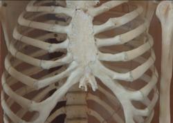 İş axtaranlar üçün maraqlı elan: Bakıda meyitdən skelet hazırlayan adamlar axtarılır - VİDEO