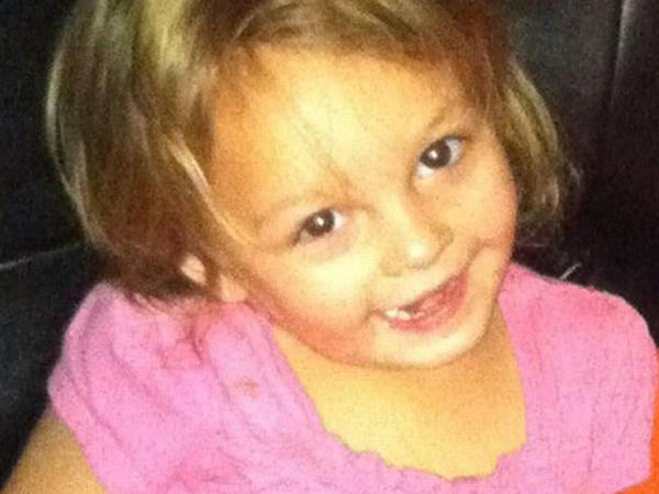 İt 3 yaşlı qızı parçalayıb, öldürdü - FOTO
