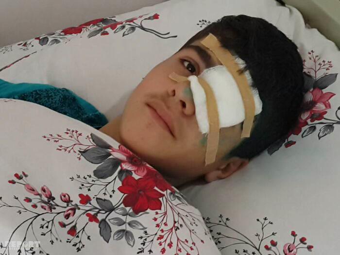Abşeronda güllə atıldı: məktəbli gözündən yaralandı - FOTO