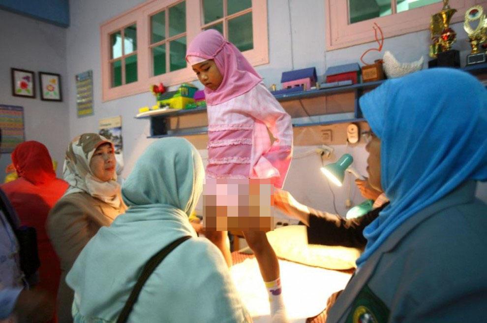 Müsəlman qızlar belə sünnət olunur - FOTO