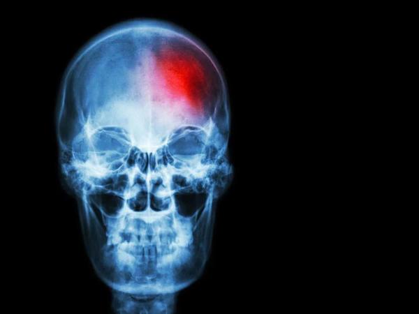 Beyin ziyanını təyin edən qan analizi