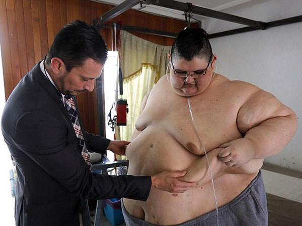 Ən kök adam 250 kq arıqladı - FOTO