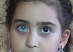 6 yaşlı Zəhranın gözlərinin biri göy, digəri qara rəngdədir - VİDEO - FOTO