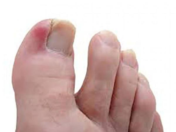 Onixokriptoza daha çox ayağın baş barmağında rast gəlinir