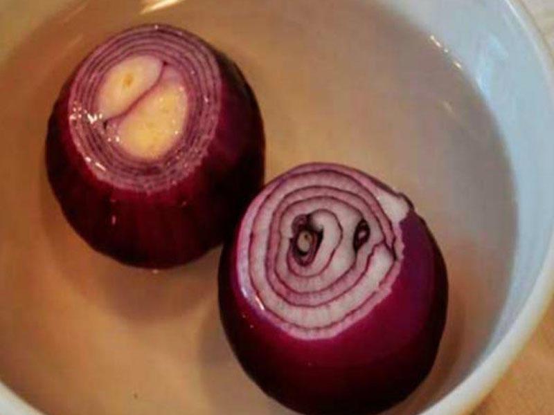 Böyrəkləri tam təmizləyən resept: 2 soğan və 2 litr su
