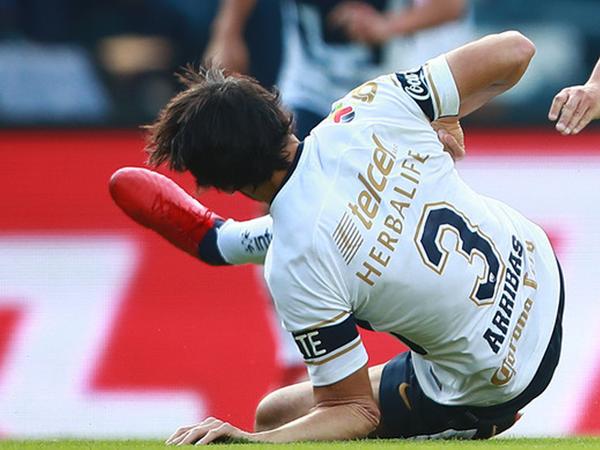 Oyunu zamanı futbolçunun qolu qırıldı - VİDEO