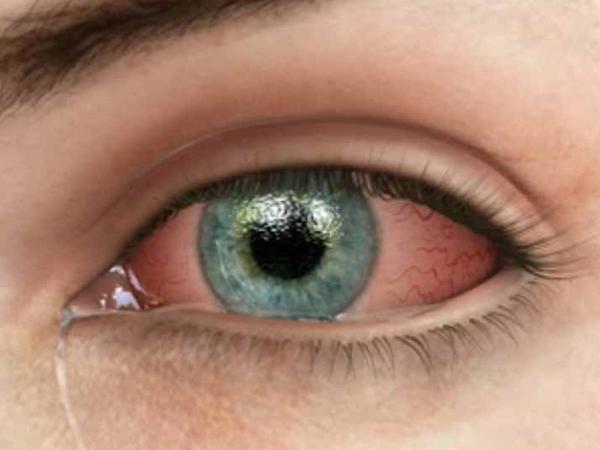 """Göz qızartısı bu xəstəliklərin əlaməti ola bilər - <span class=""""color_red"""">EHTİYATLI OLUN</span>"""
