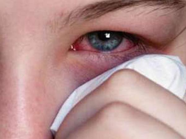 """Göz allergiyasının qarşısını almağın <span class=""""color_red"""">5 YOLU</span>"""