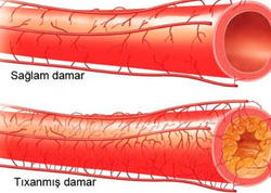 Damarlar üçün ən faydalı məhsul - infarktın riskini 50% azaldır!