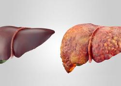 Qaraciyəri təmizləyən qidalar