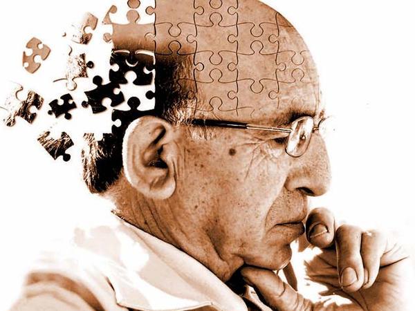 Alzheimerə qarşı genetik həll tapıldı