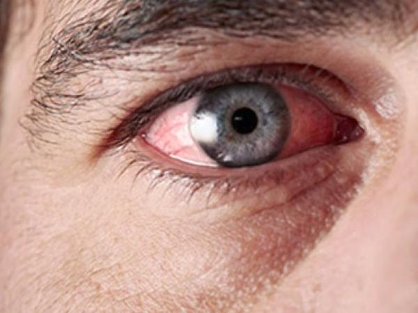 Alimlər göz xəstəlikləri və kəmağıllıq arasında bağlılıq olduğunu sübut ediblər