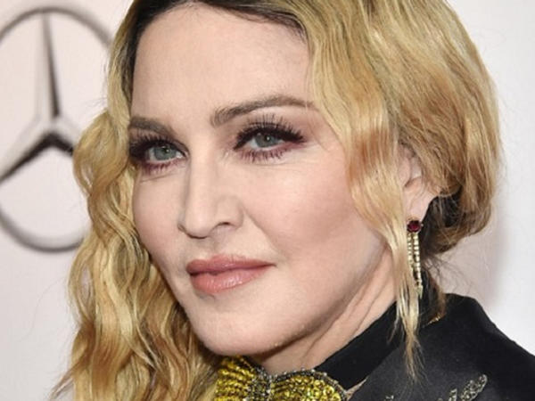 """Madonnaya oxşamaq üçün 18 dəfə əməliyyata girdi - <span class=""""color_red"""">FOTO</span>"""
