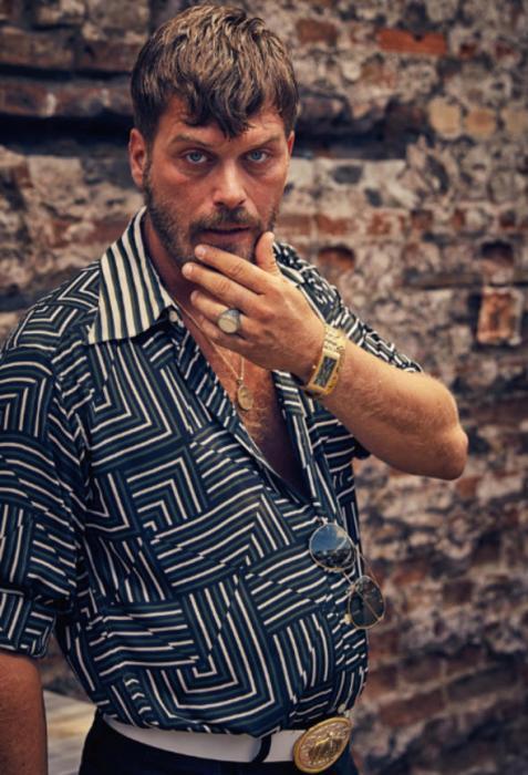 Türkiyənin ən yaraşıqlı aktyorunun qüsuru tapıldı - FOTO