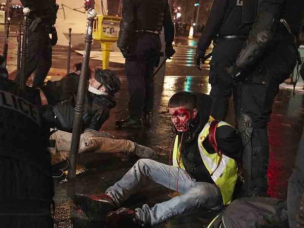 "Tramp Parisi ""partladır"": Fransanı ""sarılıq"" bürüyüb - VİDEO - FOTO"