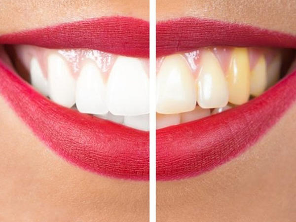 Sarı dişlərdən və diş daşlarından necə qurtulmaq olar? - Ucuz üsul