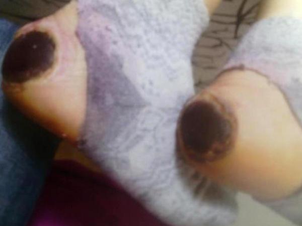 Doğum evində hamilə qadının ayağını yandırdılar - FOTO