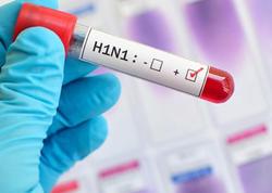 Gürcüstanda daha iki nəfər qrip virusundan ölüb