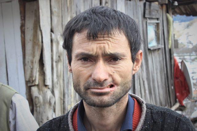 Eşşəyi dişlədi, həyatı CƏHƏNNƏMƏ DÖNDÜ: evlənə bilmir - VİDEO - FOTO