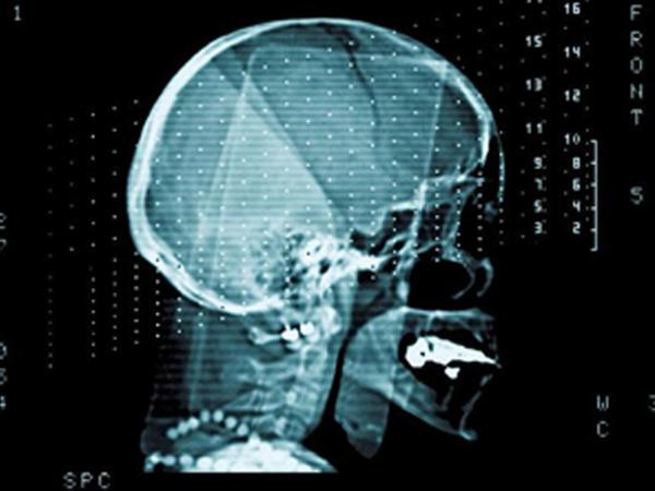 Yeni proqram beyin fəaliyyətini yaxşılaşdıracaq