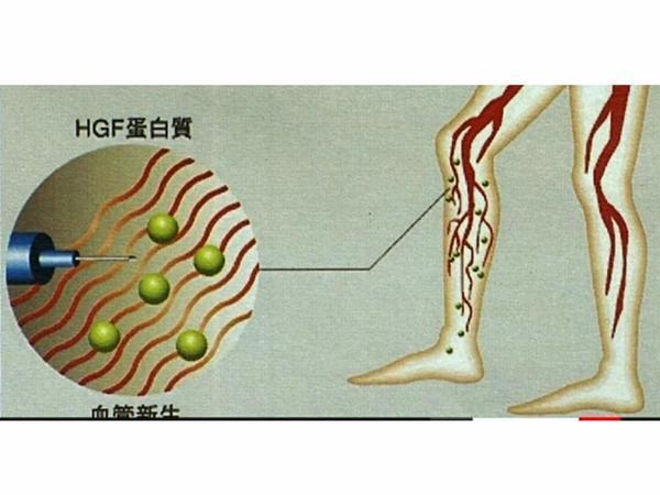 Yaponiya gen terapiyası üçün preparatdan istifadəyə razılıq verib