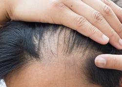 Alopesiya – Saç tökülməsi