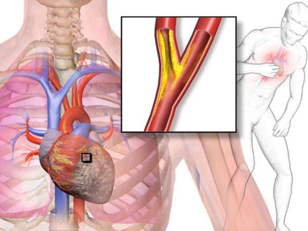 Kirəclənmiş damarları təmizləyən 7 faydalı məhsul