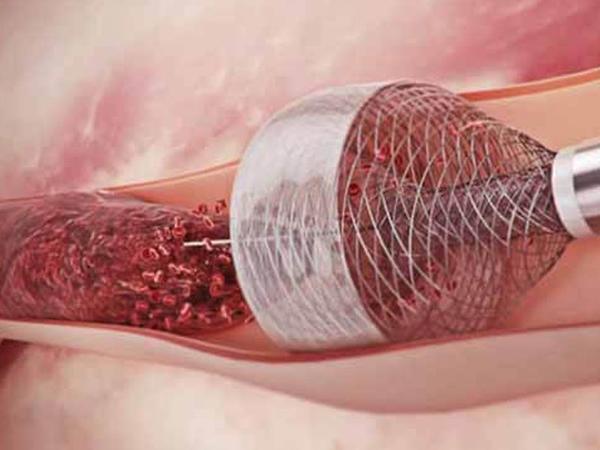 Xəstənin ayağındakı tromb xüsusi əməliyyatla parçalandı - Ağciyər emboliyasından xilas